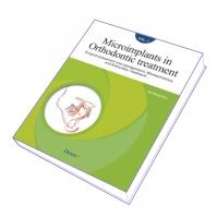 Microimplants in Orthodontic Treatment