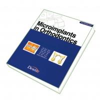 Microimplants in Orthodontics